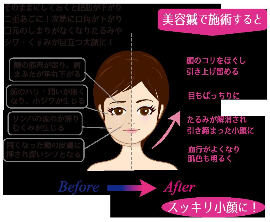 顔のたるみは表情筋の衰えが原因