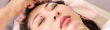顔に打つ美容鍼